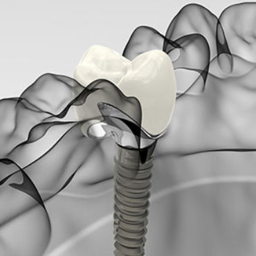 Dealing with Loose Dental Implants