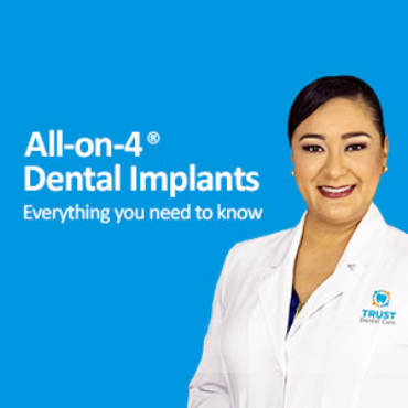 All on 4 Dental Implants in Mexico: Everything you need to know