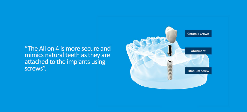 All on 4 dental implants is more secure and mimics natural teeth