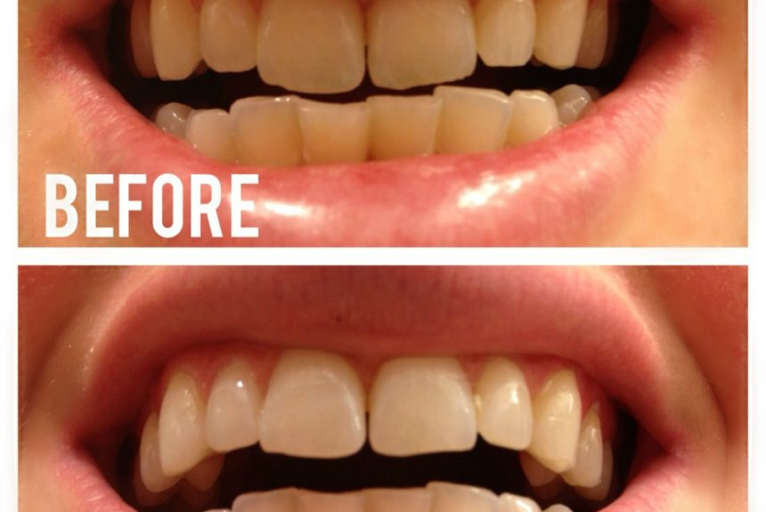 Does Activated Charcoal Teeth Whitening Works?  You Need to Know This