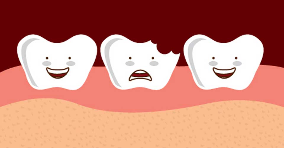 chipped tooth dental emergency