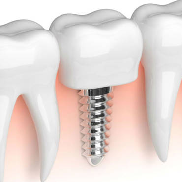 Mini Dental Implants and Hybrid Dentures: Just Say No