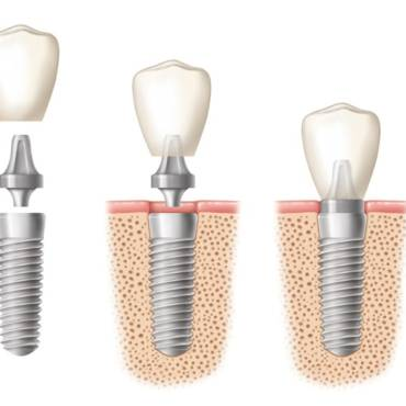Tijuana Dental Implants: Your Key to a Flawless Bright Smile