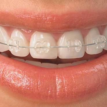 Is Wisdom Tooth Extraction Necessary Before You Get Braces?
