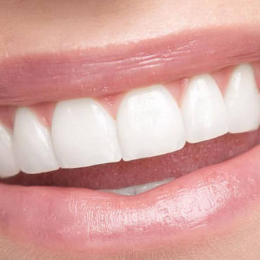 Tips To Protect You Enamel