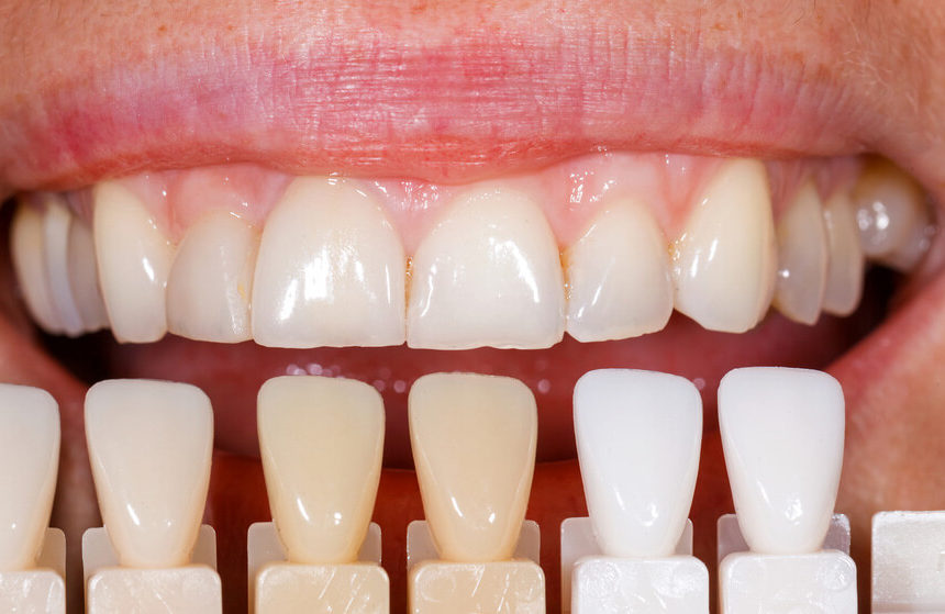 Uveneers vs. Porcelain Veneers a Cheap Alternative?