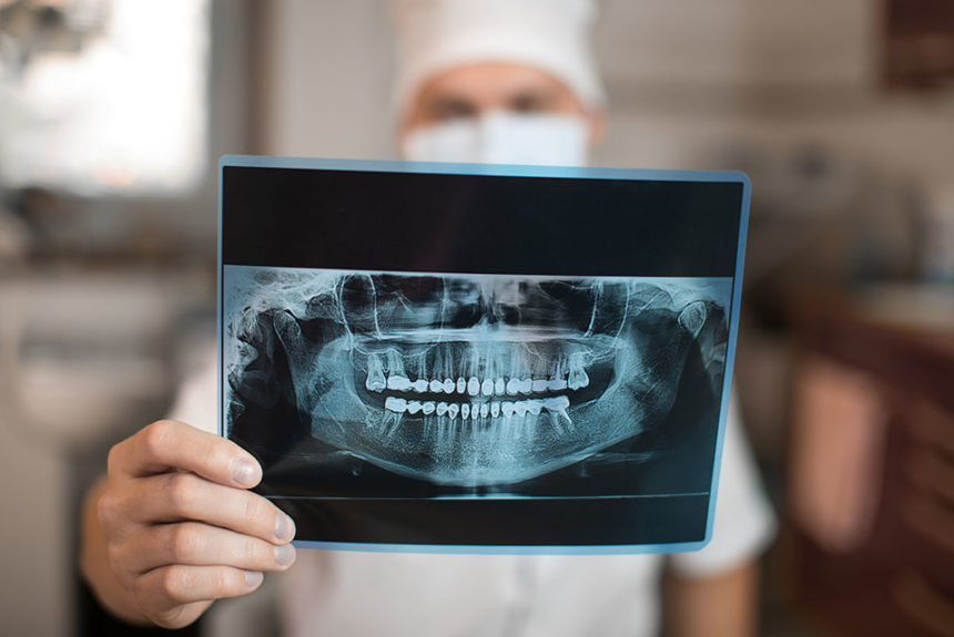 Dentist Appointment: Why I Need a Dental Consultation?