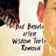 bad breath after wisdom teeth removal