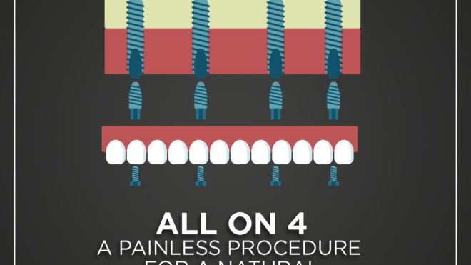 I Have My Dental Implants, Now What? Follow These Tips.