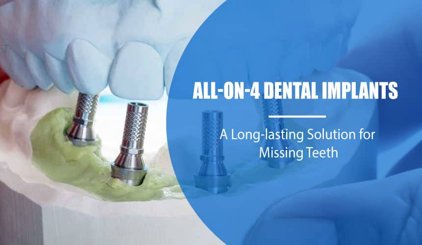 All-On-4 Dental Implants in Tijuana: A Long-lasting Solution for Missing Teeth