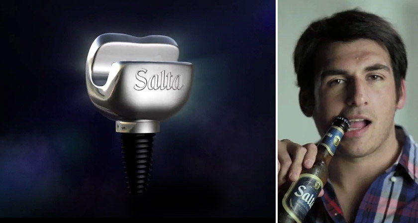 bottle opener tooth implant