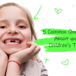 4 Common Questions About your Children's Teeth (Answered)