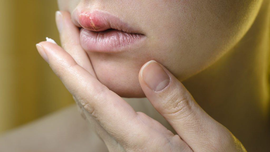 Herpes on the Upper Lip of a Young Woman