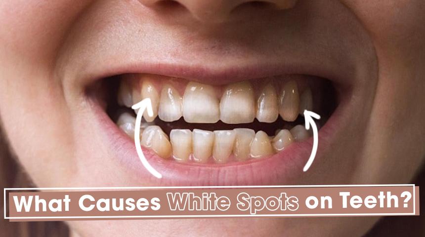 white spots