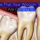 how to know if your wisdom teeth are coming in