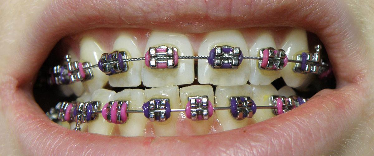 how to fix buck teeth
