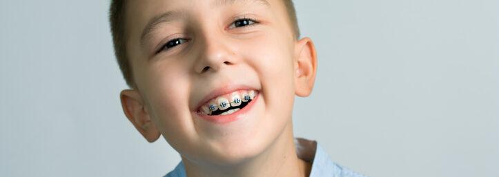 ways to fix buck teeth