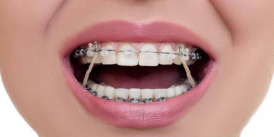 Orthodontic Elastic
