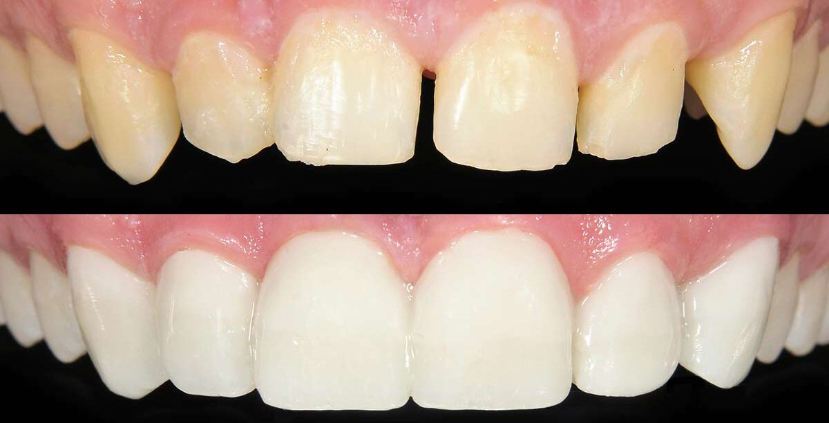 Fix Cracked Tooth