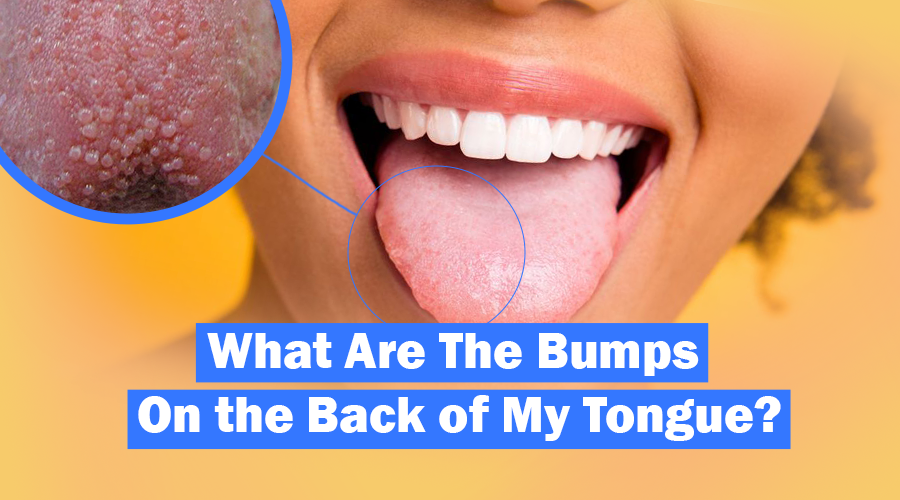 bumps on back of tongue