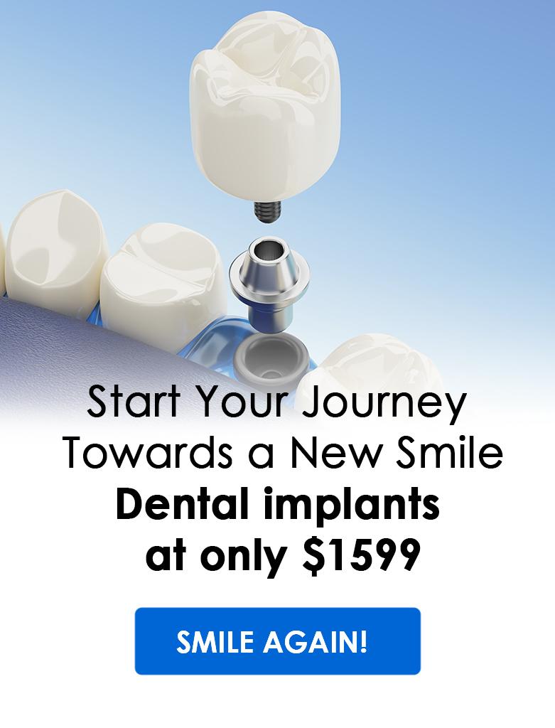 dental implants promotion