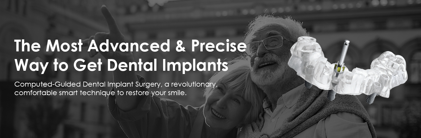 guided dental implants