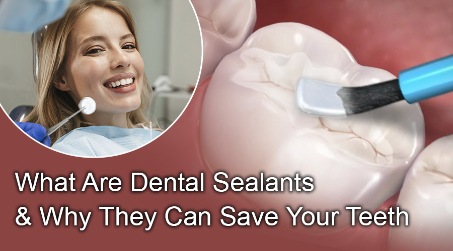 What Are Dental Sealants & Why They Can Save Your Teeth