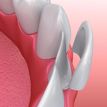 veneer teeth shaving