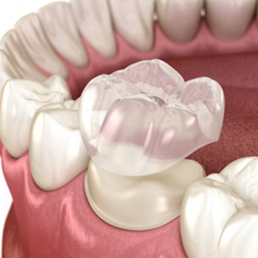 Dental crown preparation:
